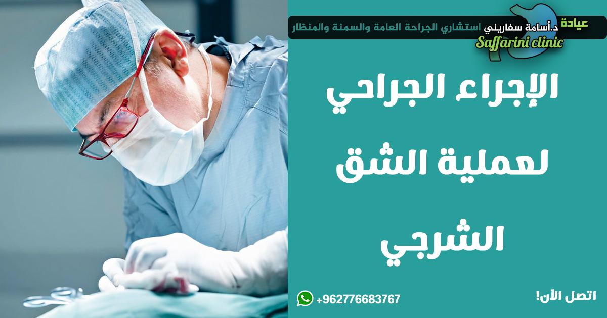 الاجراء-الجراحي-لعملية-الشق-الشرجي