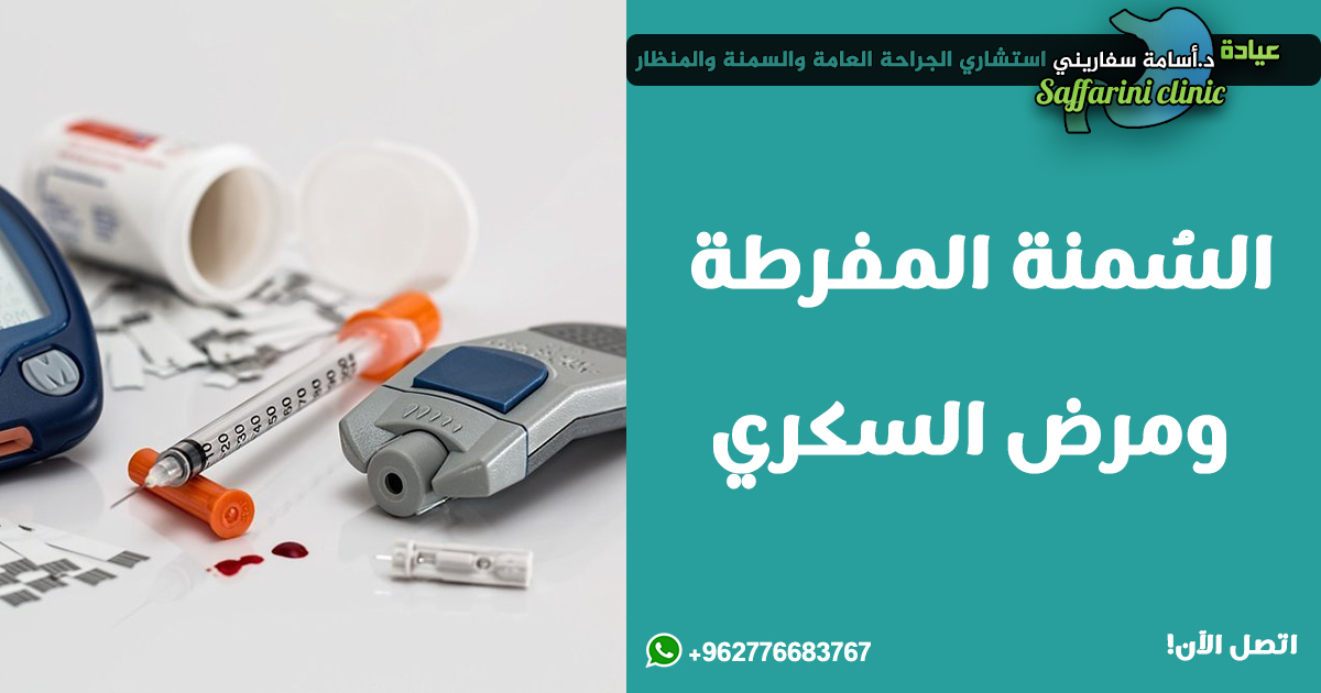 السُمنة-المفرطة-ومرض-السكري