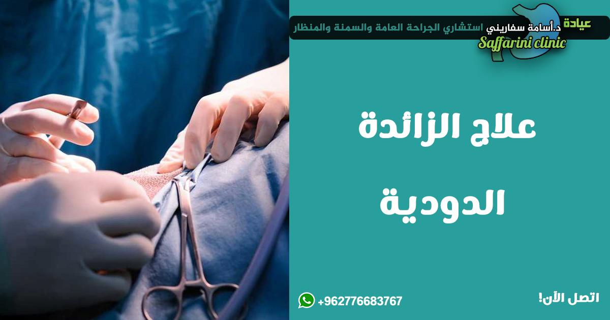 علاج-الزائدة-الدودية