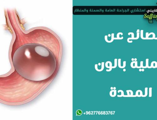 نصائح عن عملية بالون المعدة